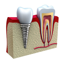 """""""Shutterstock"""" nuotr./Danties implantas – tai danties šaknies pakaitalas, ant kurio tvirtinamas protezas (dar vadinamas vainikėliu)."""