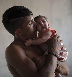 Zika viruso smūgis nėščiosioms: Kolumbijoje juo užsikrėtė jau 3100 besilaukiančių moterų