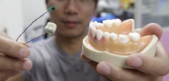 Pusantrų metų trukęs dantų tiesinimo procesas – keliasdešimties sekundžių filmuke