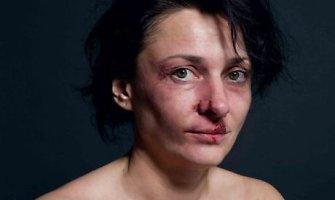 Smurto šeimoje mastai glumina: vien ramiame Druskininkų krašte kasmet keliama 10 tūkst. bylų