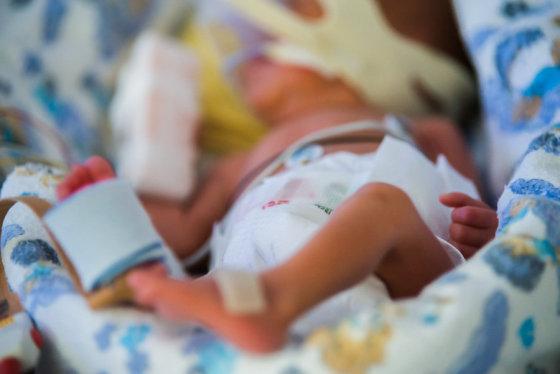 Į šį pasaulį toks mažylis atkeliauja per anksti, skubėdamas, dažnai negalintis savarankiškai kvėpuoti, reguliuoti kūno temperatūros, valgyti, tesverdamas vos 500 – 1000 gramų.