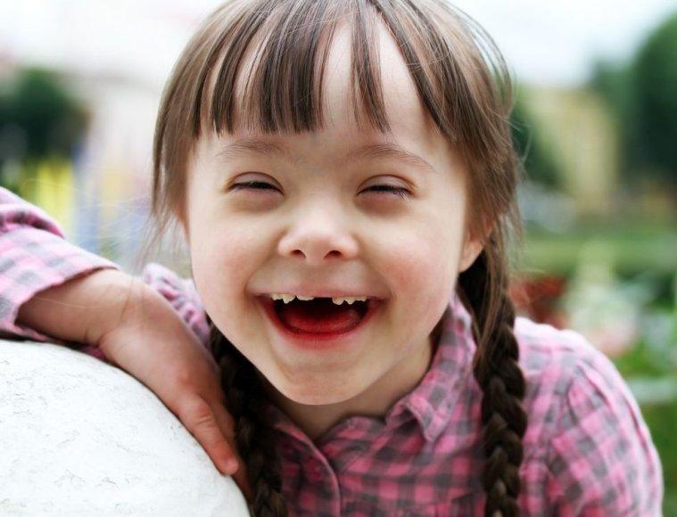 Dauno sindromą turintys vaikai yra meilūs ir paslaugūs, mėgsta žaisti, pamėgdžioti kitus.